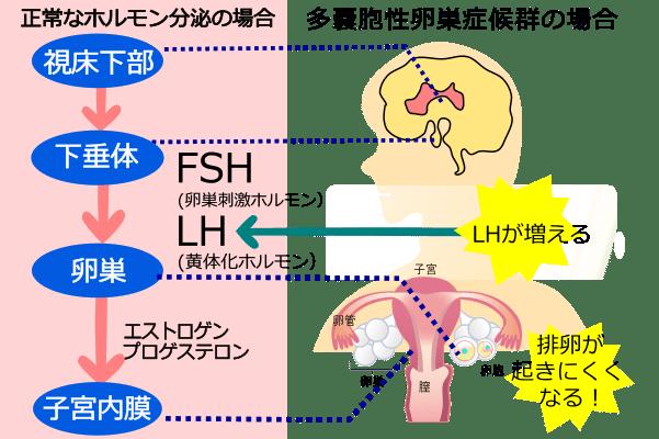 卵巣 症候群 多 嚢胞 pcos 性