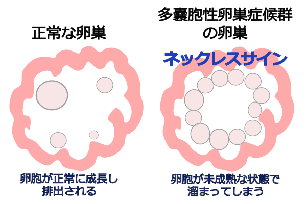 Pcos 性 卵巣 多 嚢胞 症候群