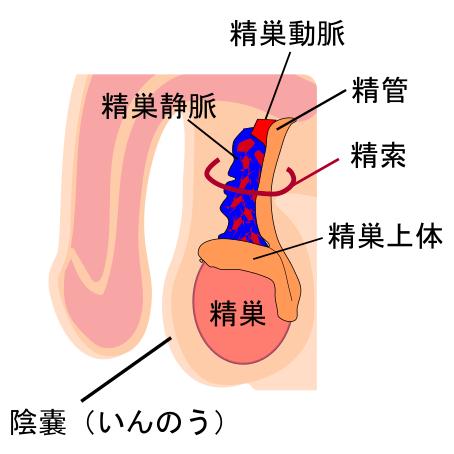 精 索 静脈 瘤 手術