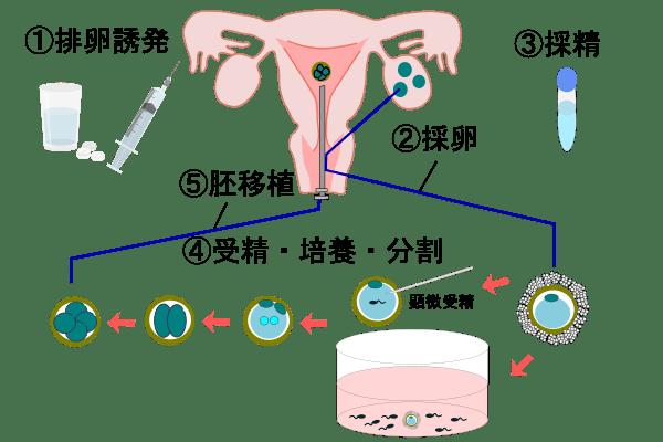 体外受精の流れ ※日本産婦人科学会資料参考